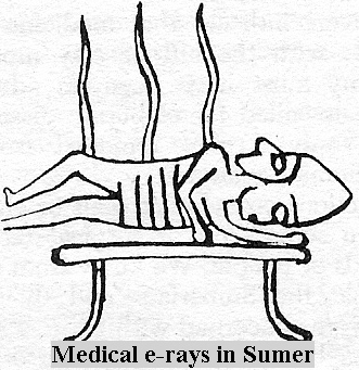 ancient medical X-rays in Mesopotamia, Bau & son Damu were doctors who administered medical care to alien gods, & eventually to mankind, ancient artefacts of the giant gods are shamefully being destroyed by Radical Islam, attempting to eliminate ancient knowledge, evidence that directly contradicts doctrines of the top power-brokers of Islam